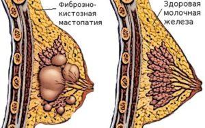 Фиброзно кистозная мастопатия