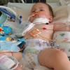 Годовалый мальчик проглотил детскую мозайку 2,5 см длиной