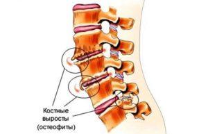 Остеохондроз, остеофиты на позвоночнике