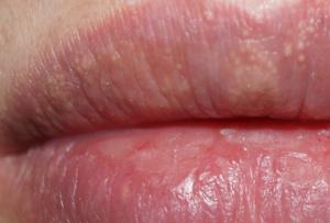 Папиллома на половой губе и коричневое пятно на слизистой