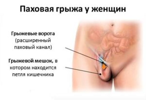 Образование в паховой складке во время беременности