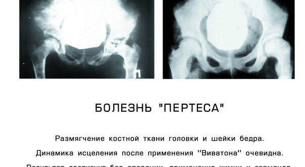 Односторонняя болезнь Пертеса, группа инвалидности
