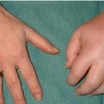 Осложнение после удаления липомы