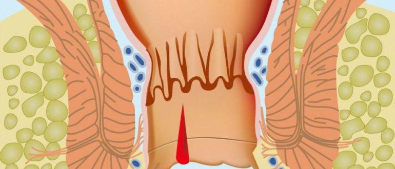 Хронические запоры и анальная трещина