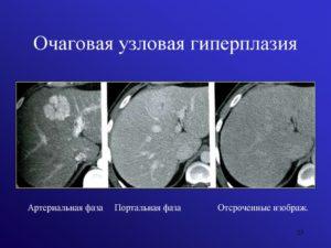 Очаговая гиперплазия