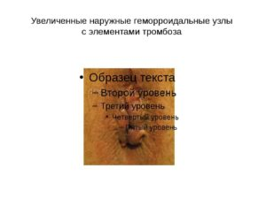 Некроз внешнего геморроидального узла