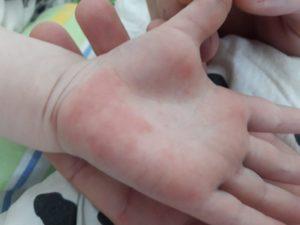 От чего может быть сыпь на руках у ребенка?