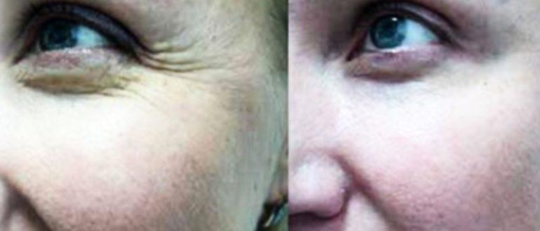 Ослабла кожа под глазами после ботокса, пройдет?