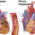 Определение диагноза, опоясывающие боли грудной клетки