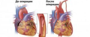 Перелёт после инфаркта