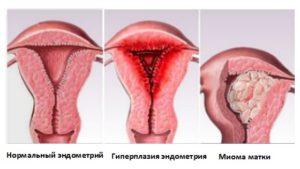 Гиперплазия эндометрия на фоне множественной миомы