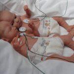 Невус или гемангиома у ребенка