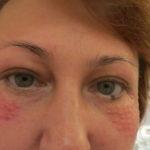 Гистология после выкидыша
