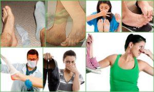 Химический запах пота между ног