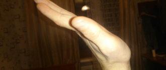 Не поднимается 3 день кисть руки левой вверх