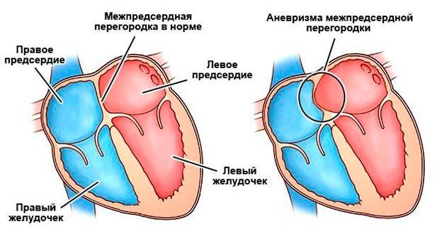 ООО (3мм), Аневризма МПП