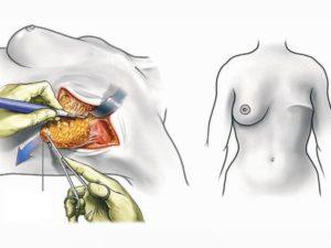 Филлоидная пограничная опухоль после операции лечение или радикальное удаление