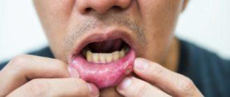 Непонятные образования в полости рта