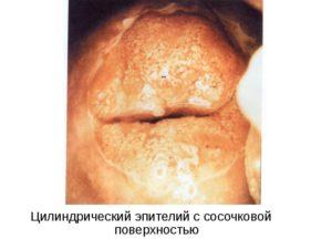 Отсутствие цилиндрического эпителия