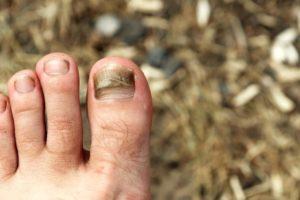 Гниение под ногтями на больших пальцах ног