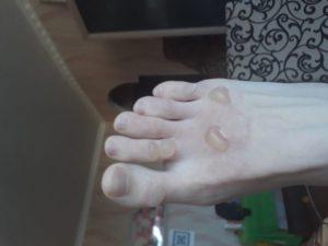 Ожог ноги 2 степени