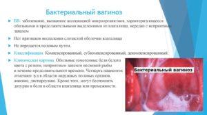 Гарднереллез и дисбактериоз в кишечнике