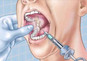 Опасна ли анестезия после неврита?