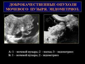 Новообразование между маткой и мочевым пузырём. Каковы лечения?