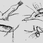 Гипотрофия матки