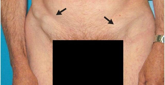 Фиброз яичка, паховая лимфаденопатия