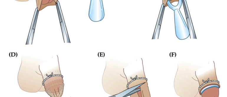 Не открывается головка после обрезания