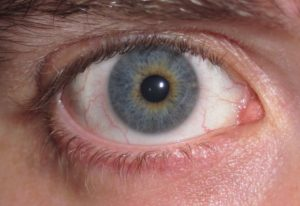 Гетерохромия, потемнение белка глаза