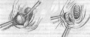 Опухоль левой половой губы