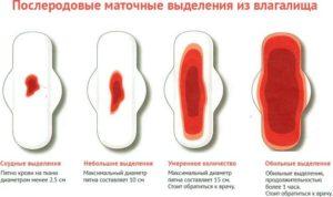 Очень мало крови при месячных