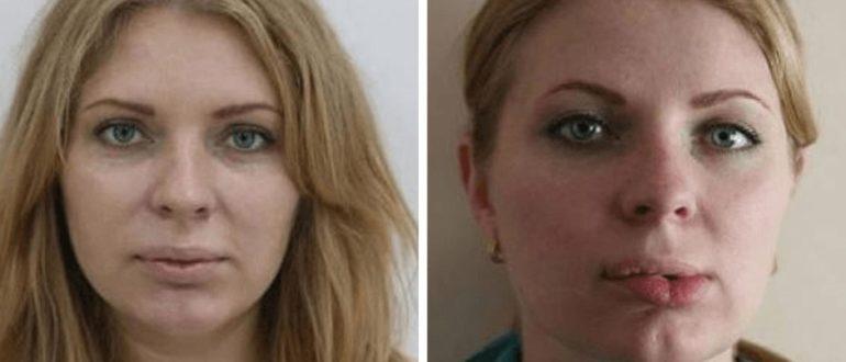 Осложнения после пластики верхней губы