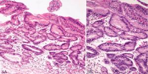 Очаговая дисплазия эпителия желудка