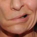 Норколут после удаления полипа