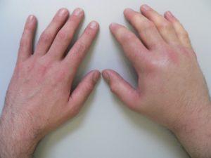 Опухла рука