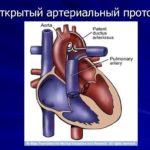 Отмена Ярины и риск беременности