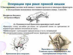 Операция на прямой кишке-онкология