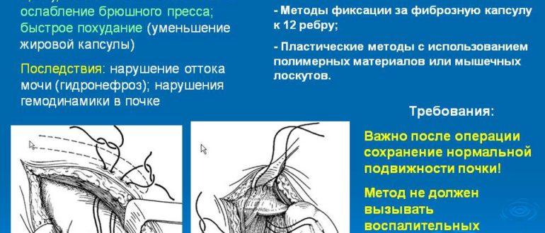 Нефроптоз и его последствия