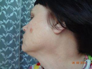 Опухоли рядом с ухом и щекой с двух сторон