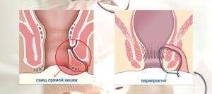 Геморрой или парапроктит