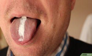 Неприятный запах изо рта, налет на языке