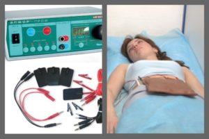 Физиопроцедуры и месячные
