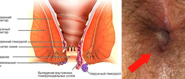Не проходит геморроидальный узел