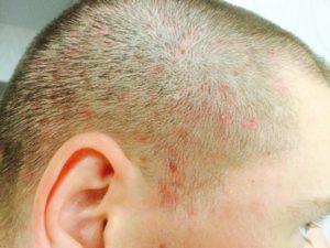 Папулы на коже головы