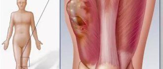 Опухла мышца бедра