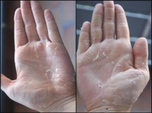 Облазит и чешется кожа рук