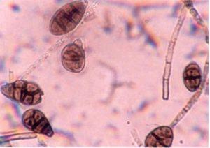 Паразитарные грибы микроскопия ногтя